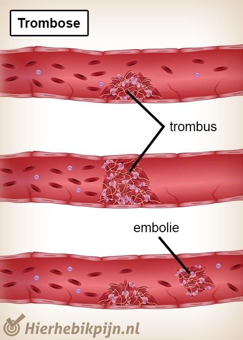 trombose trombus embolie bloedvat ader slagader
