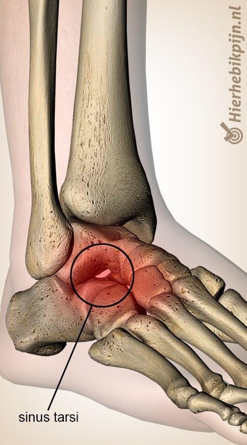 voet sinus tarsi syndroom talus calcaneus