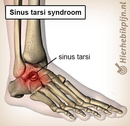 voet sinus tarsi syndroom tunnel