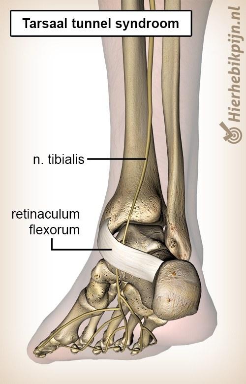 voet tarsaal tunnel syndroom nervus tibialis posterior retinaculum flexorum