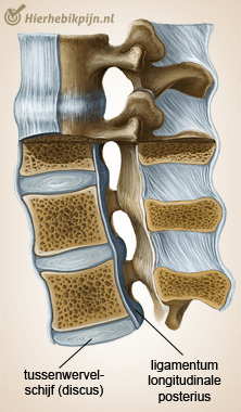 wervelkolom ligamentum longitudinale posterius tussenwervelschijf discus