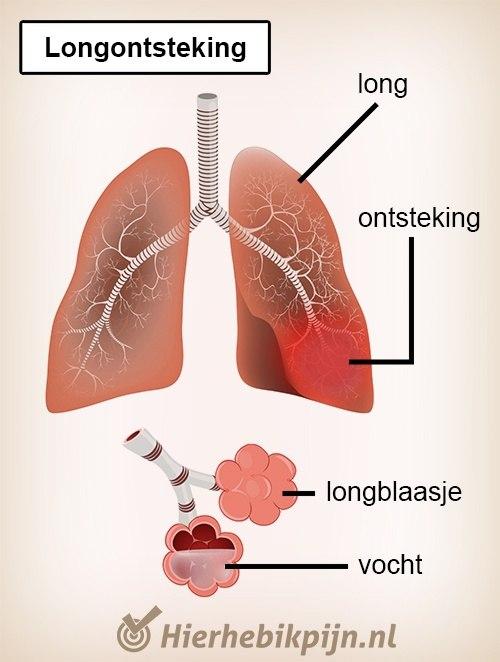 borst longen longontsteking alveoli longblaasjes vocht