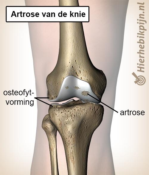knie artrose kraakbeen 3