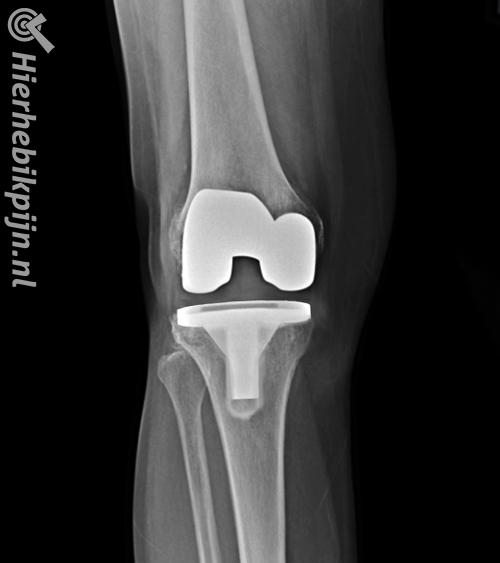 knie prothese rontgenfoto hele knieprothese kunstknie nieuwe knie vooraanzicht