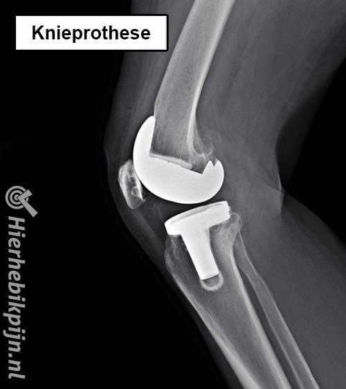 knie prothese rontgenfoto hele knieprothese kunstknie nieuwe knie zij aanzicht