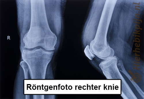 knie rongtenfoto
