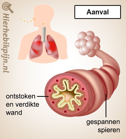 longen astma aanval anatomie