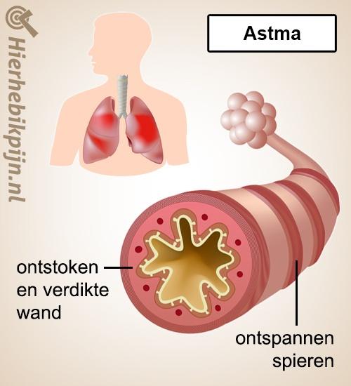 longen astma anatomie