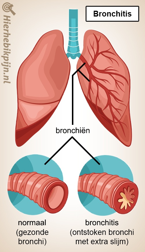 longen bronchitis bronchien normaal gezond ontstoken bronchi slijm vernauwing