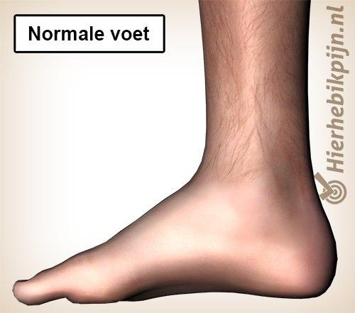 normale voet 7