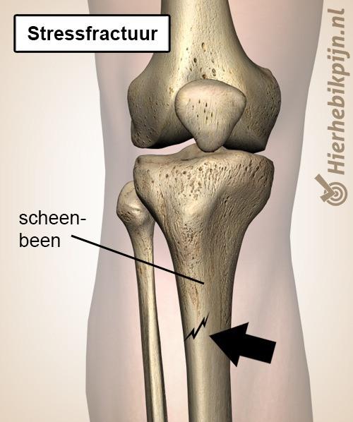 onderbeen scheenbeen stressfractuur tibia