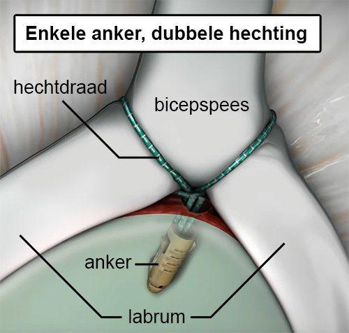 schouder slap laesie operatie type ii anker hechting labrum bicepspees