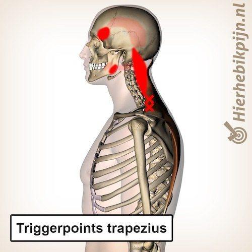 triggerpoints spier trapezius