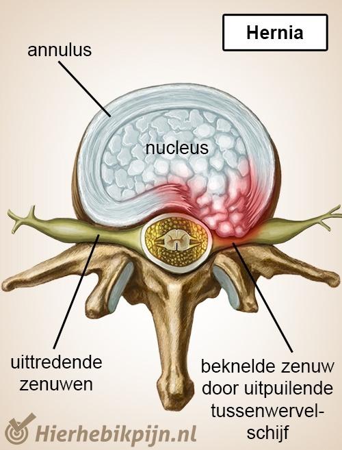 wervelkolom wervel tussenwervelschijf hernia zenuwen